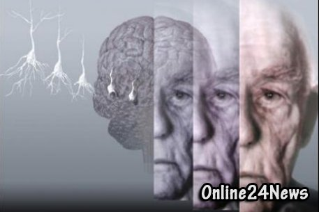 альцгеймера